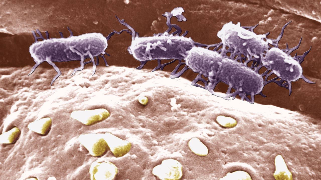 Устойчивость к антибиотикам вызвала эпидемию тифа