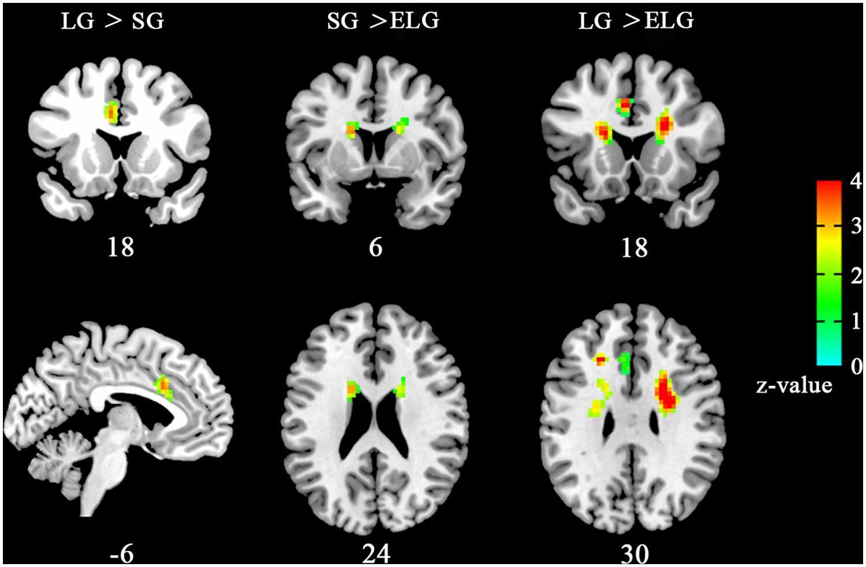Снимки МРТ показали, что такое любовь