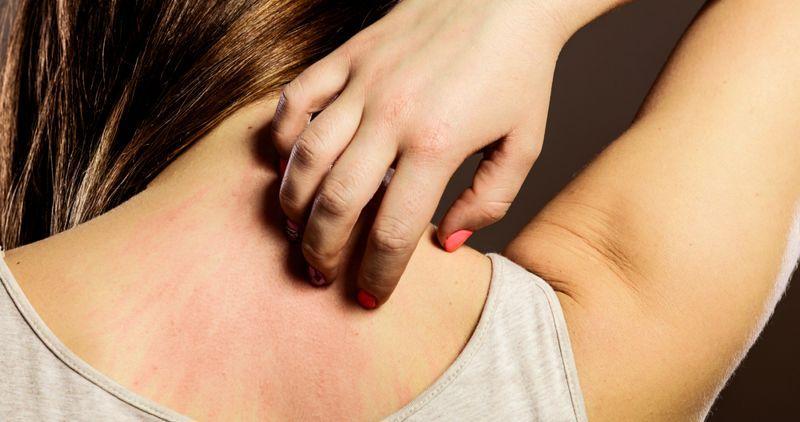 хлоргексидин вызывает аллергию