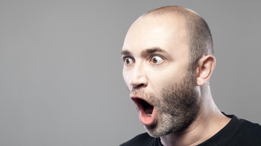 ученые предложили лечить облысение выщипыванием волос