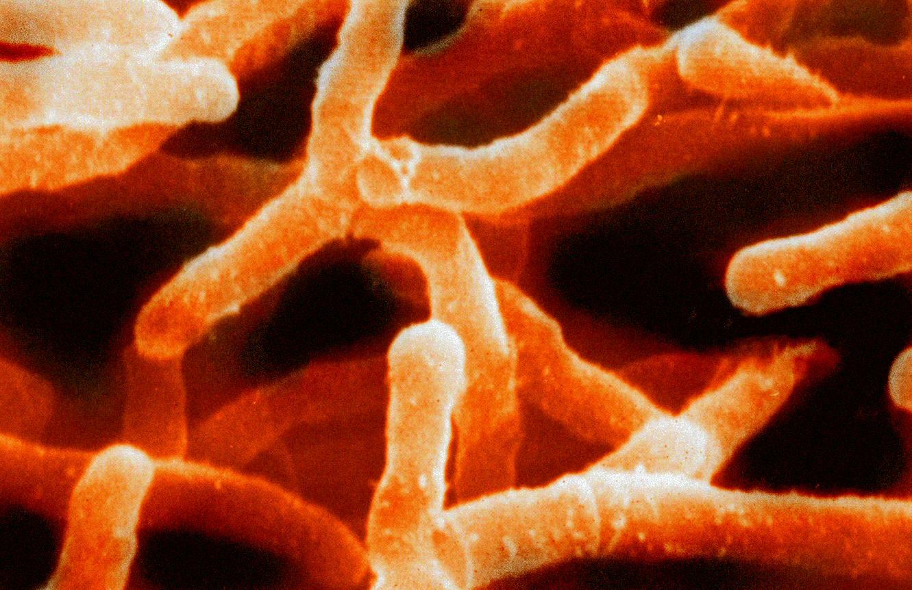 Вид актинобактерий можно определять по составу их клеточных стенок