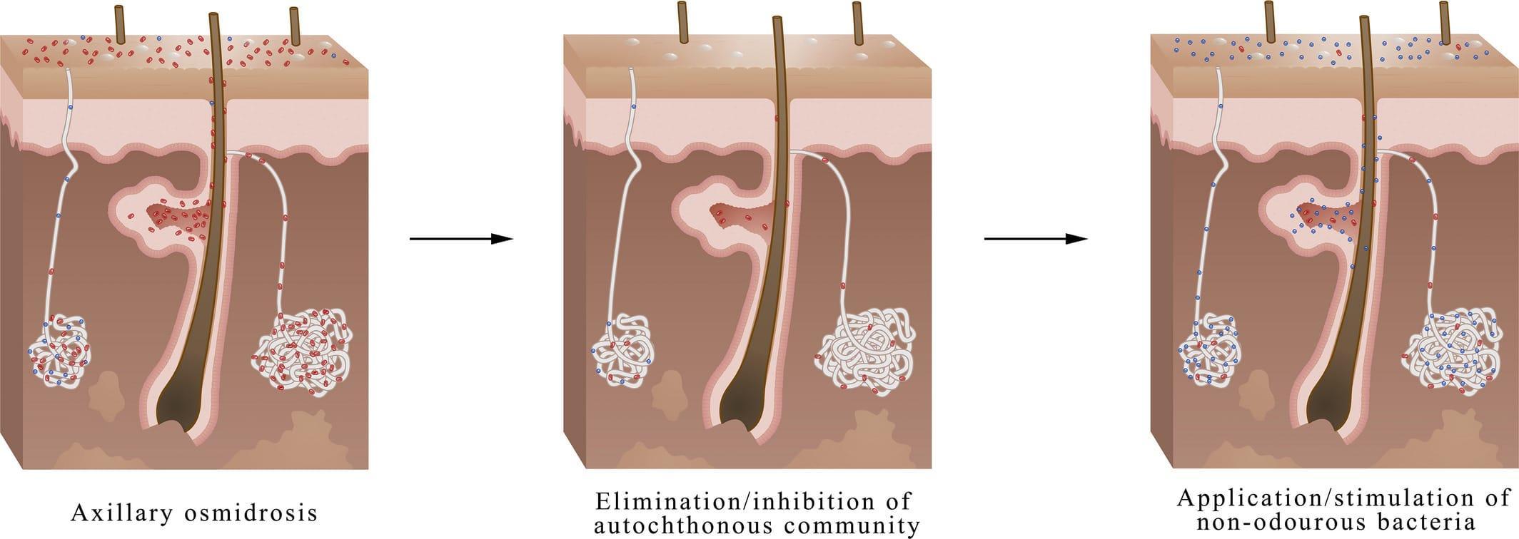 Донорские бактерии помогли устранить запах пота
