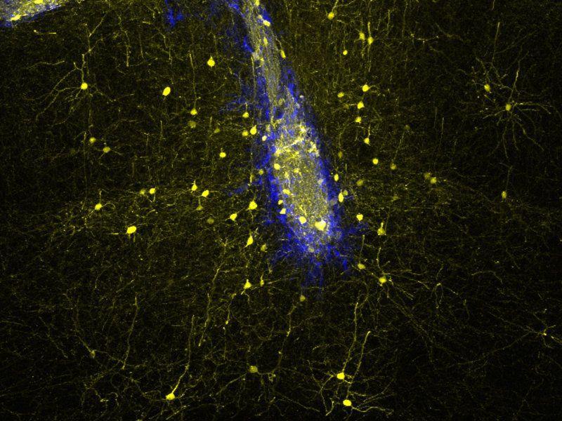 Повреждения мозга у мышей удалось устранить за счет пересадки стволовых клеток