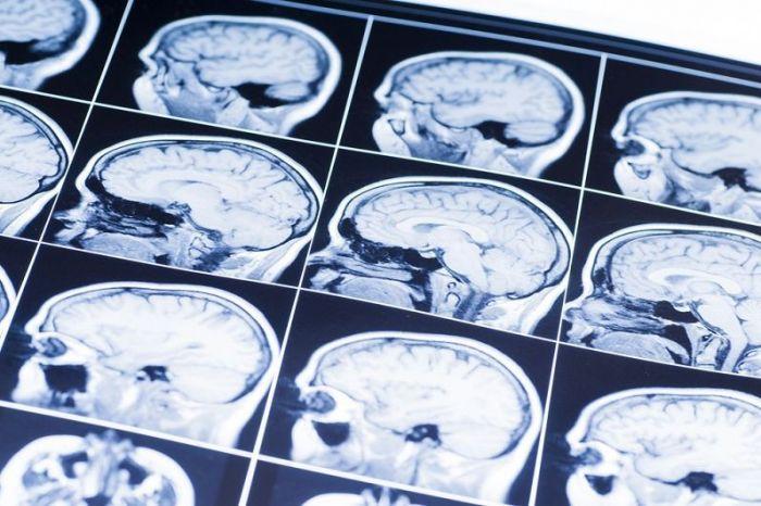 ученые разработали новый метод диагностики черепно-мозговой травмы