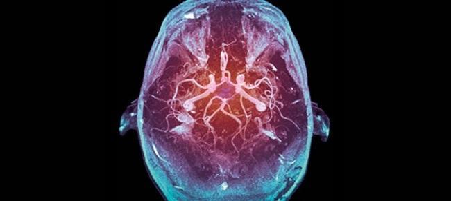 улучшение мозга