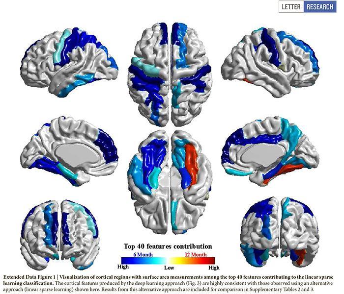 ученые нашли способ прогнозировать аутизм