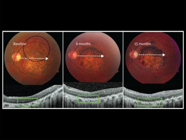 стволовые клетки вылечили тяжёлые болезни глаз