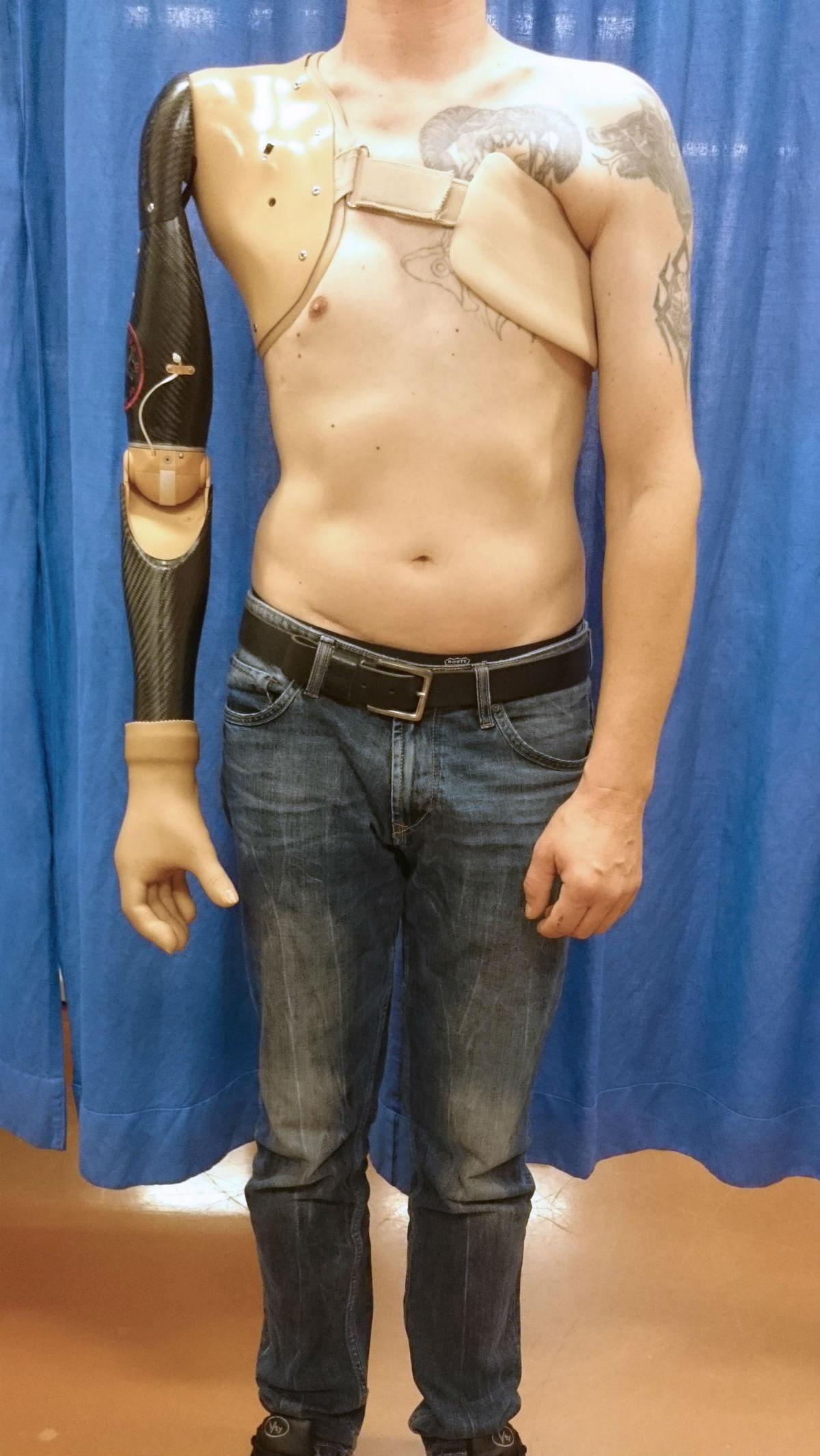 сенсорная технология увеличила количество движений, которые можно выполнить протезом руки