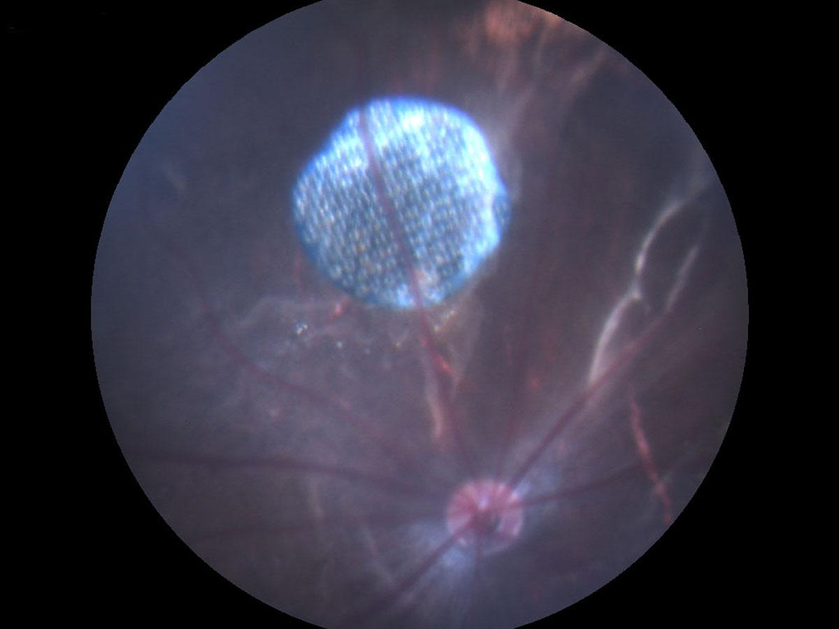 Слепым вернут зрение с помощью фотоэлектрического имплантата