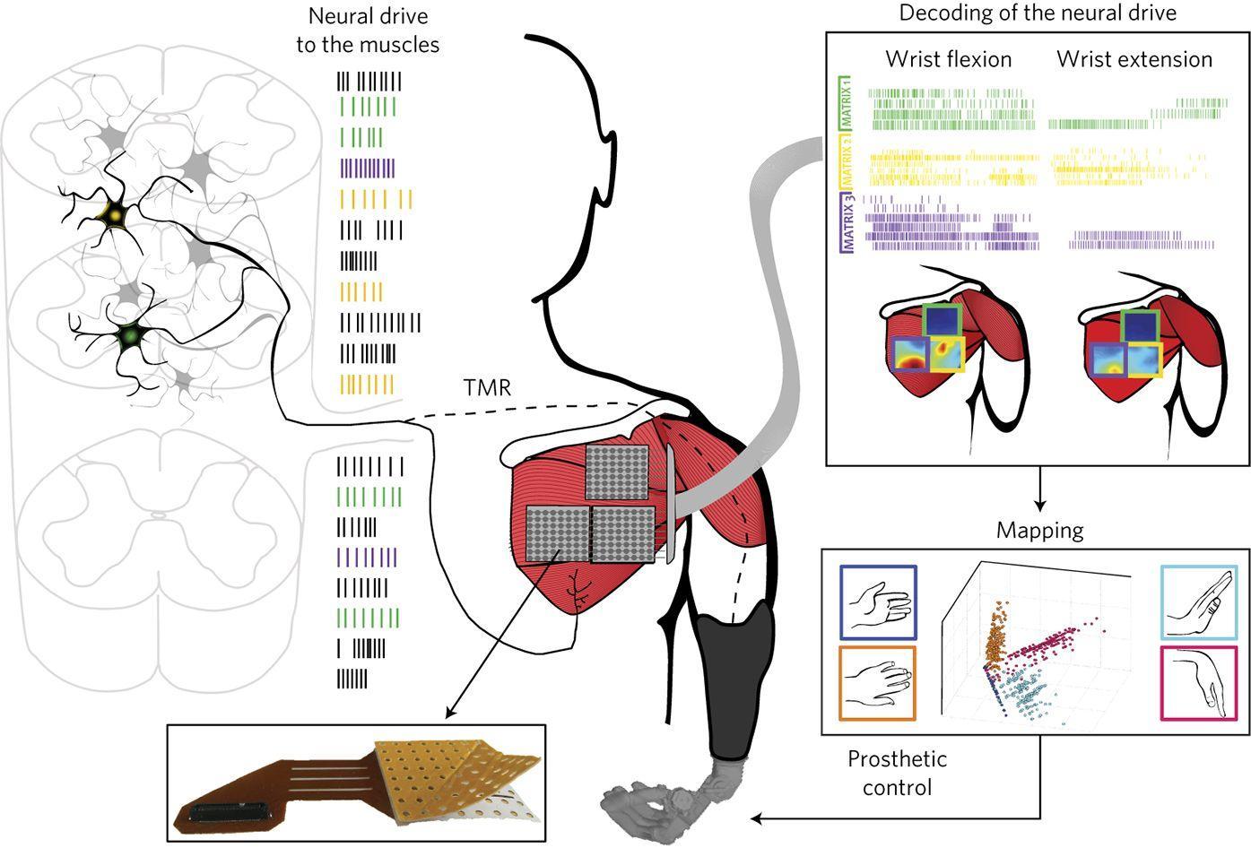 Сенсорная технология для роботизированного протеза руки увеличила количество движений
