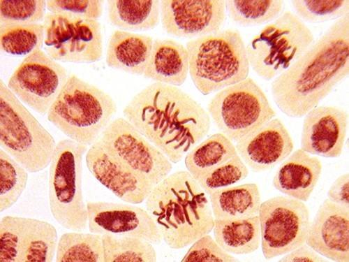 пересадка стволовых клеток может затормозить рассеянный склероз