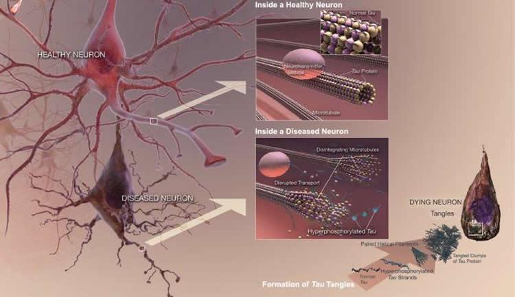 Кофеин и ряд других веществ в борьбе с болезнью Альцгеймера