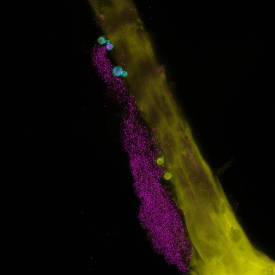 Составлена карта расположения грибков на человеческом теле