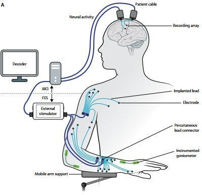 интерфейс «мозг-компьютер» позволил управлять парализованной рукой