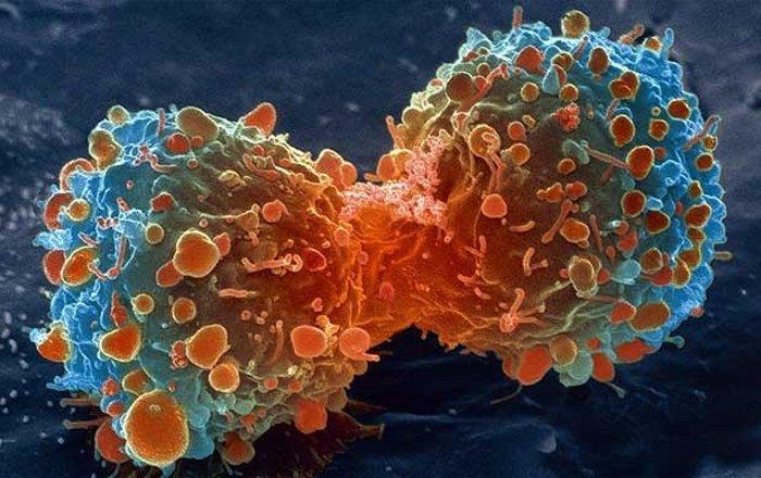 новое лечение рака