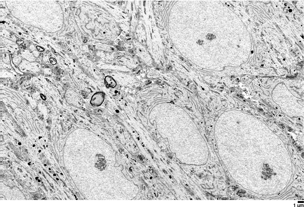Нейронные связи мозга научились сохранять при заморозке