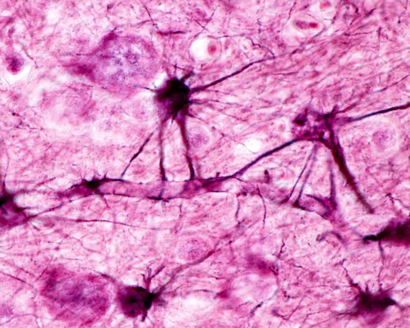 Служебные клетки мозга помогают нейронам держать форму