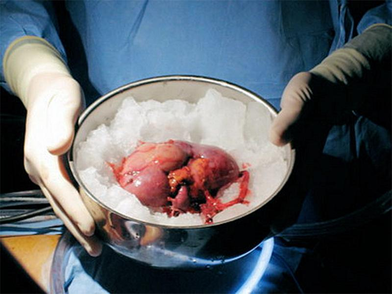 в России проводится всего 10% от необходимого числа трансплантаций