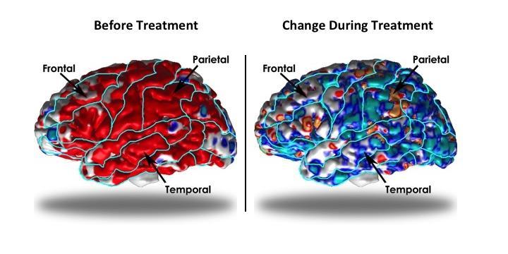 Депрессия утолщает кору головного мозга, препараты возвращают её толщину к норме