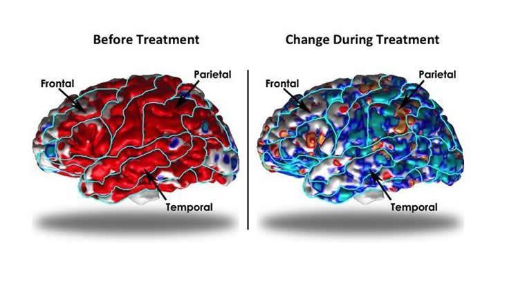 Депрессия утолщает кору головного мозга