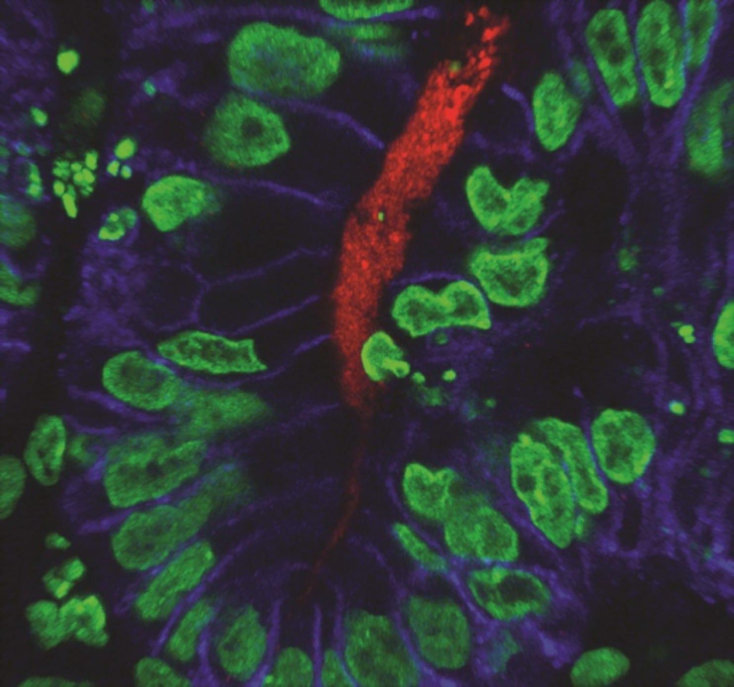 Впервые выращены органоиды человеческого желудка