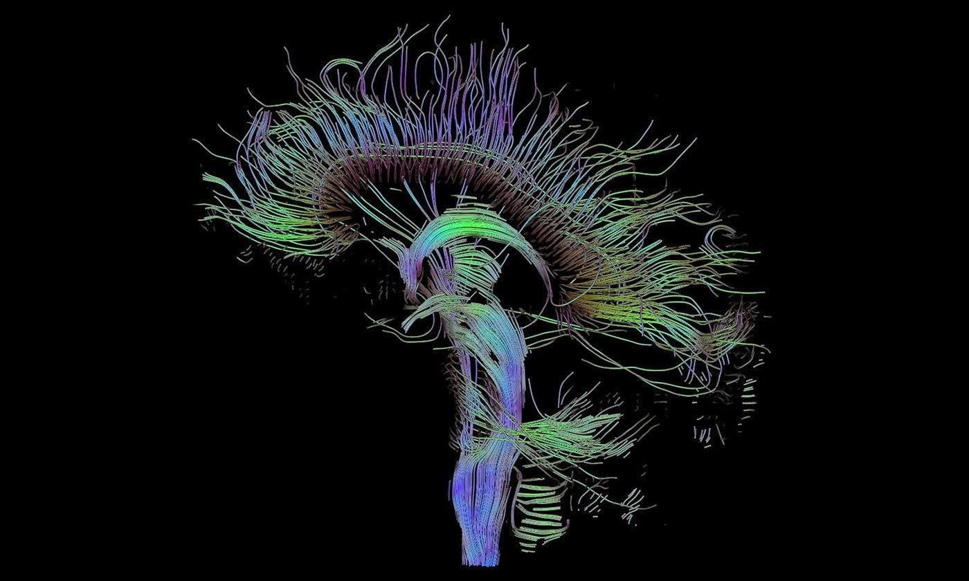 магниторезонансная томография