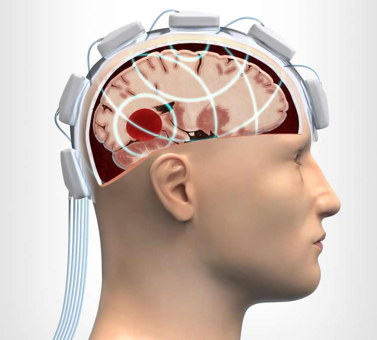 микроволновой шлем
