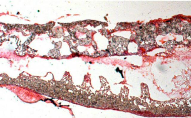 кишечники выращенные в лаборатории