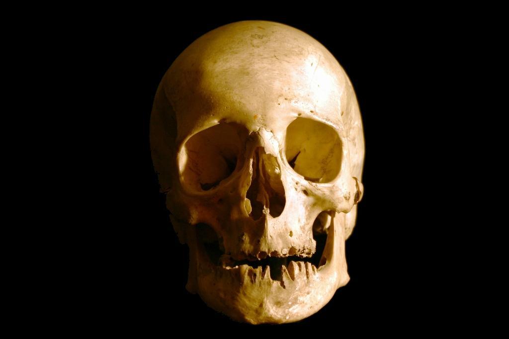 стволовые клетки помогут восстановить череп