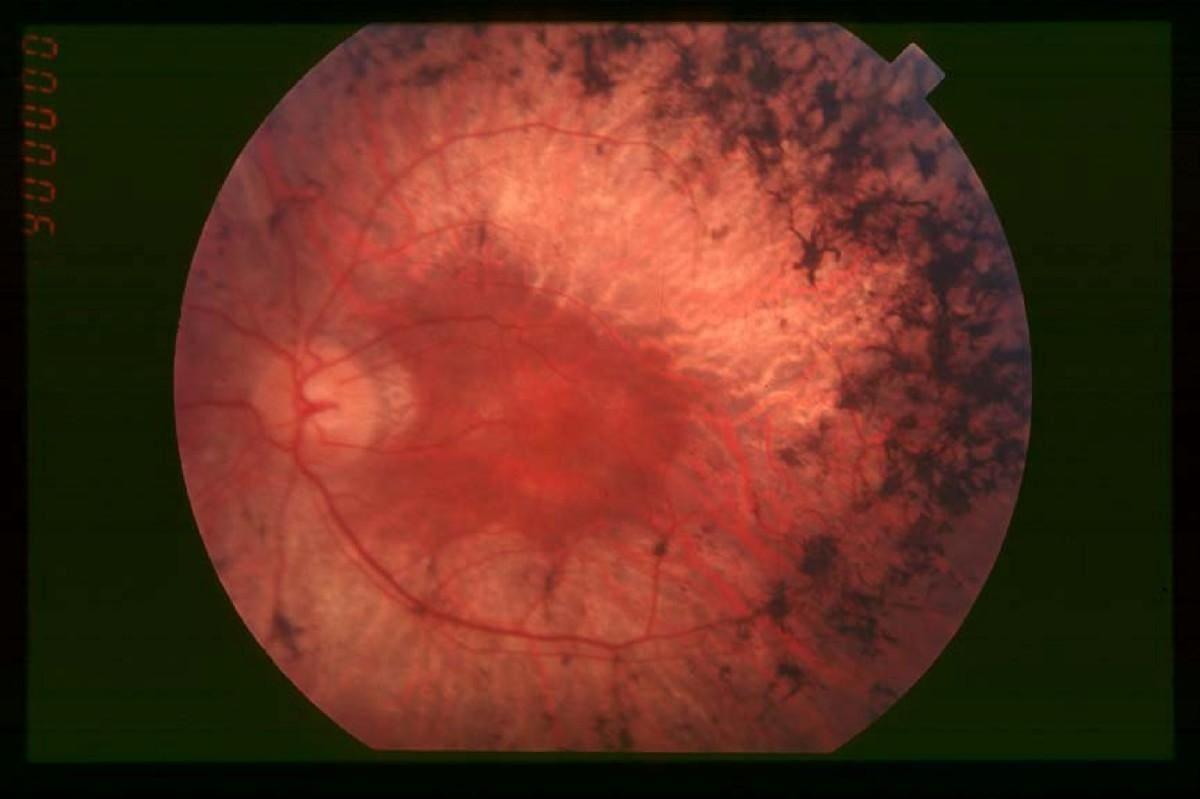 Редактирование генома применили для лечения слепоты