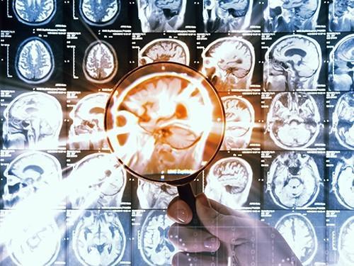 смертельную детскую опухоль мозга