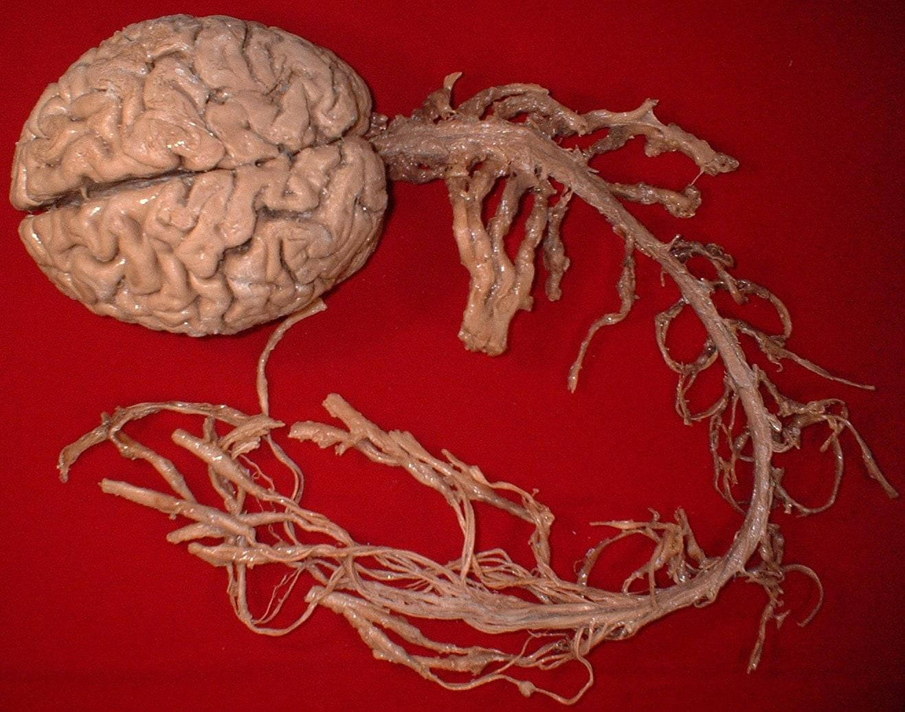 Вячеслав Дубынин о спинном мозге