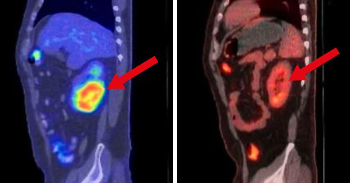 Иммунотерапия помогла ранее безнадежным онкобольным