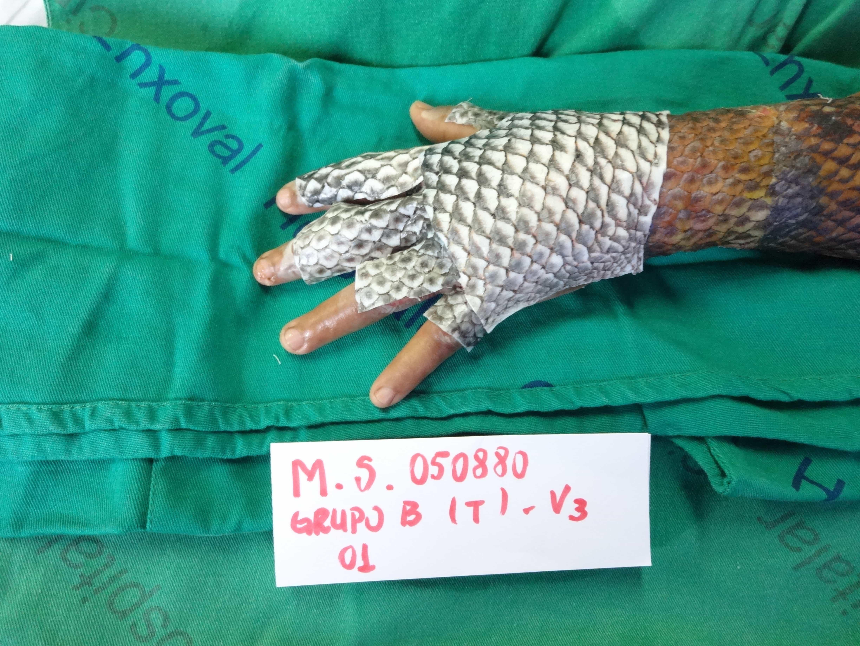 Для лечения ожогов можно использовать рыбью кожу