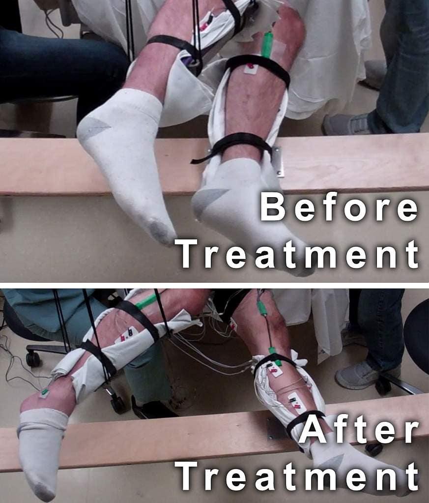 Стимуляция спинного мозга вернула парализованным радость движения
