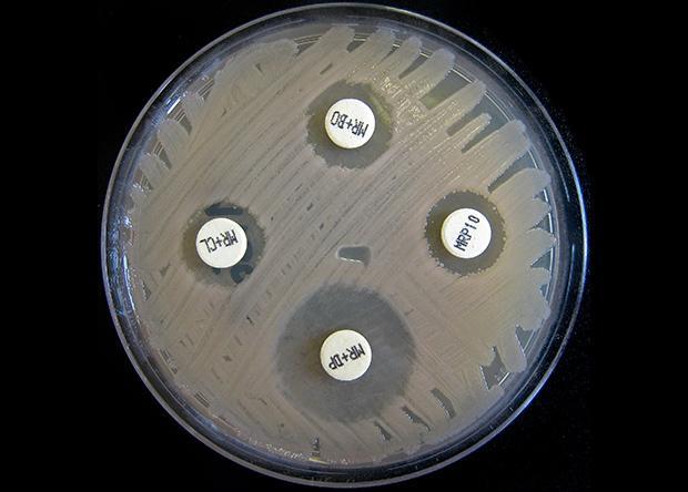 ООН позвала весь мир на борьбу с устойчивостью к антибиотикам
