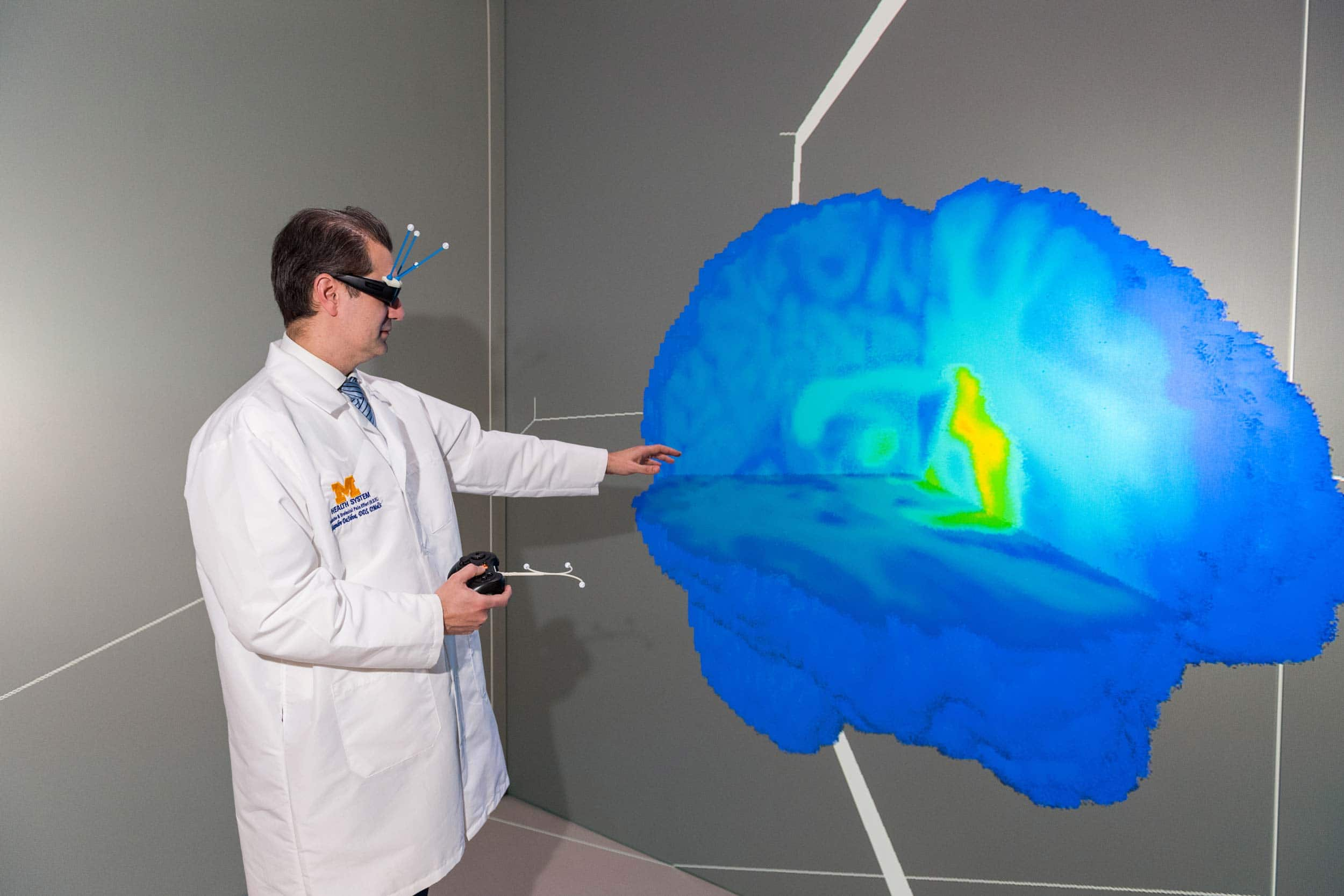 Мигрень роняет уровень дофамина в мозге