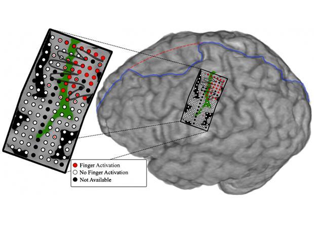 новый нейроинтерфейс позволил управлять отдельными пальцами протеза