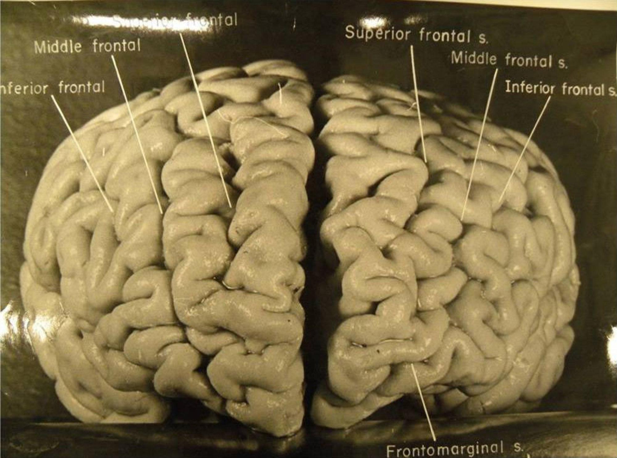 История одного мозга: Альберт Эйнштейн