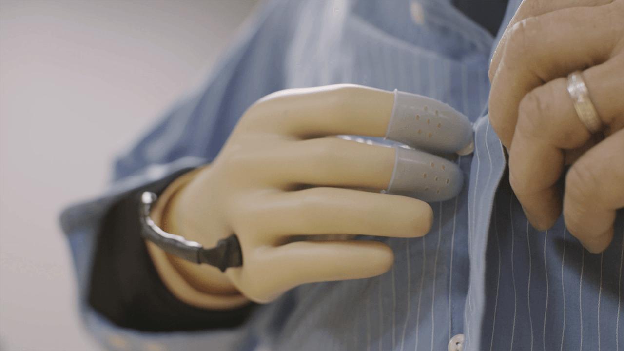 Ученые доработали чувствительный протез руки