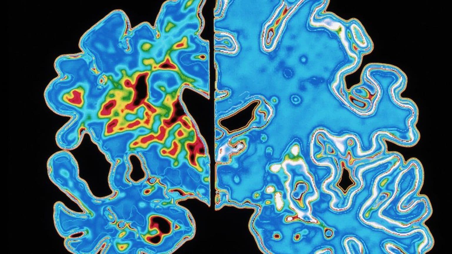 Болезнь Альцгеймера может оказаться заразной