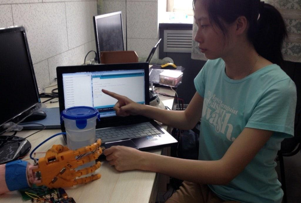 Бионическую руку научили бить хозяина током за ожоги