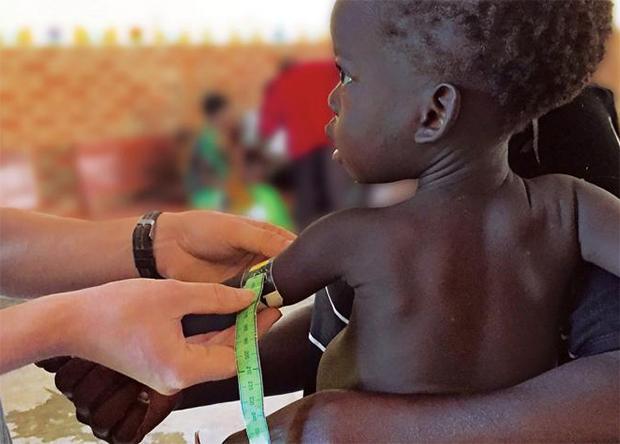 задержку роста детей связали с кишечным микробиомом