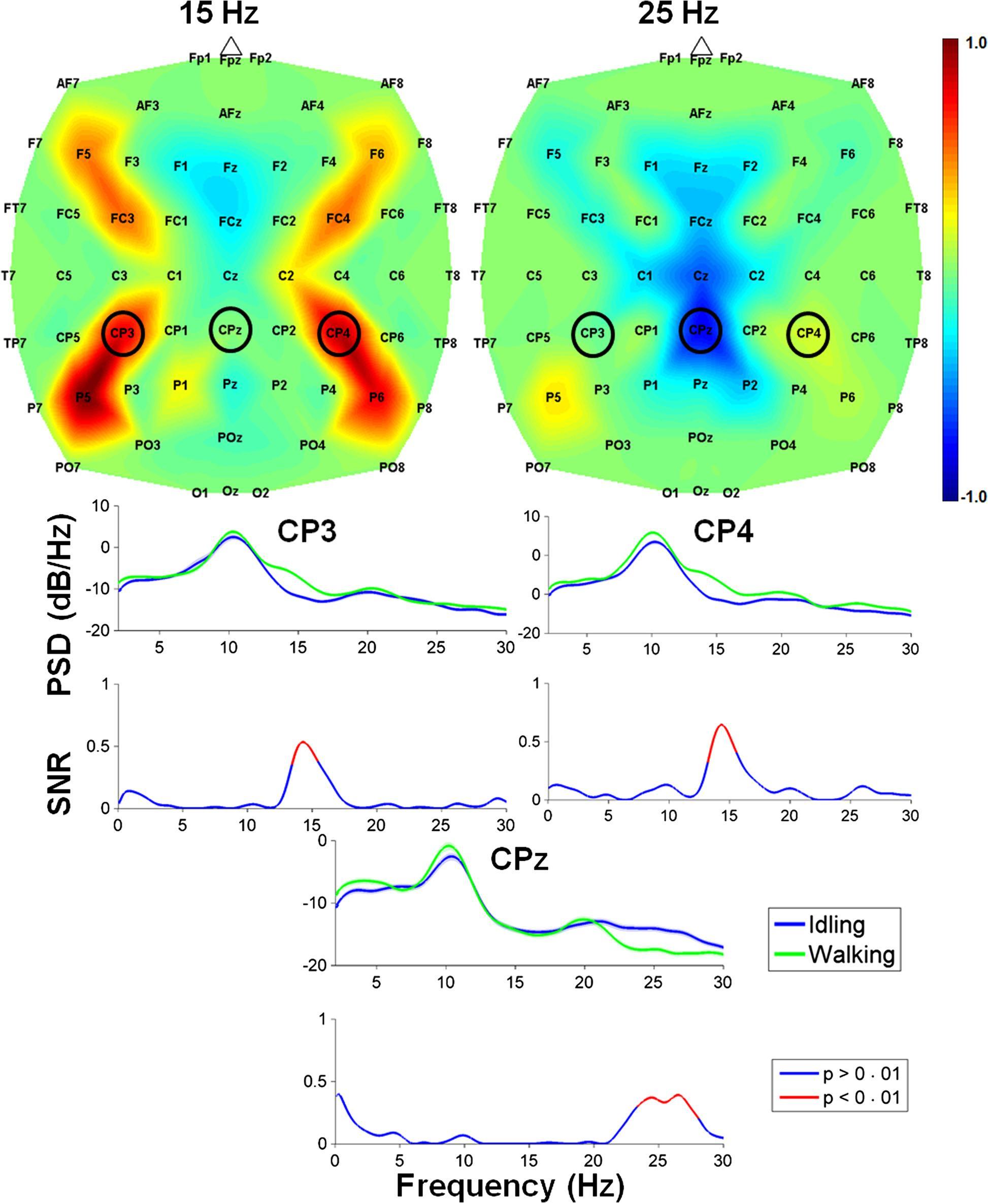 Парализованного человека научили ходить при помощи силы мысли и нейроинтерфейса