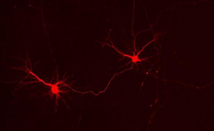 Российские биологи научились включать нейроны теплом