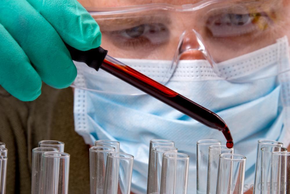 правительство не одобрило принудительное лечение ВИЧ-инфицированных