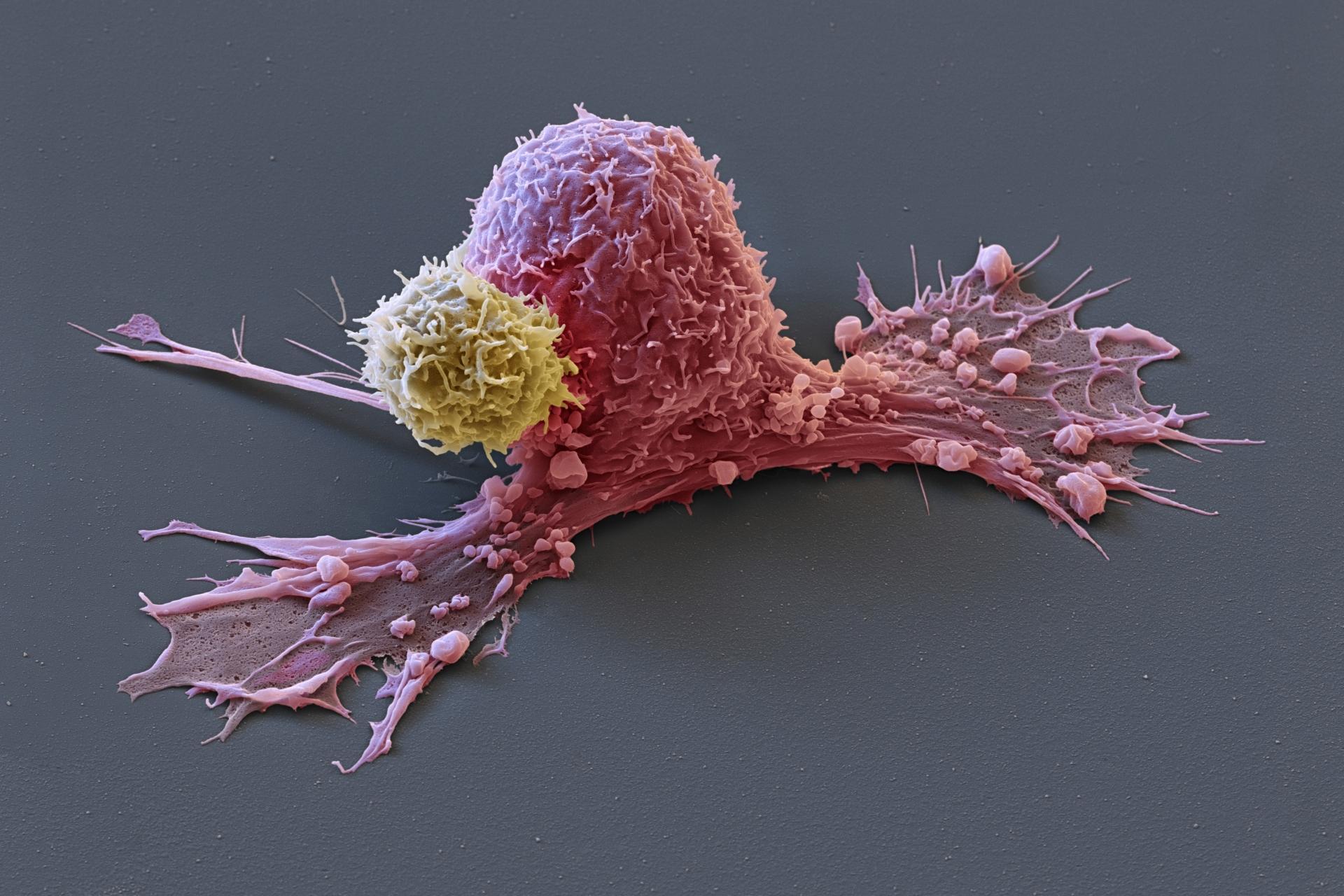 Рак груди готовится к метастазам заранее