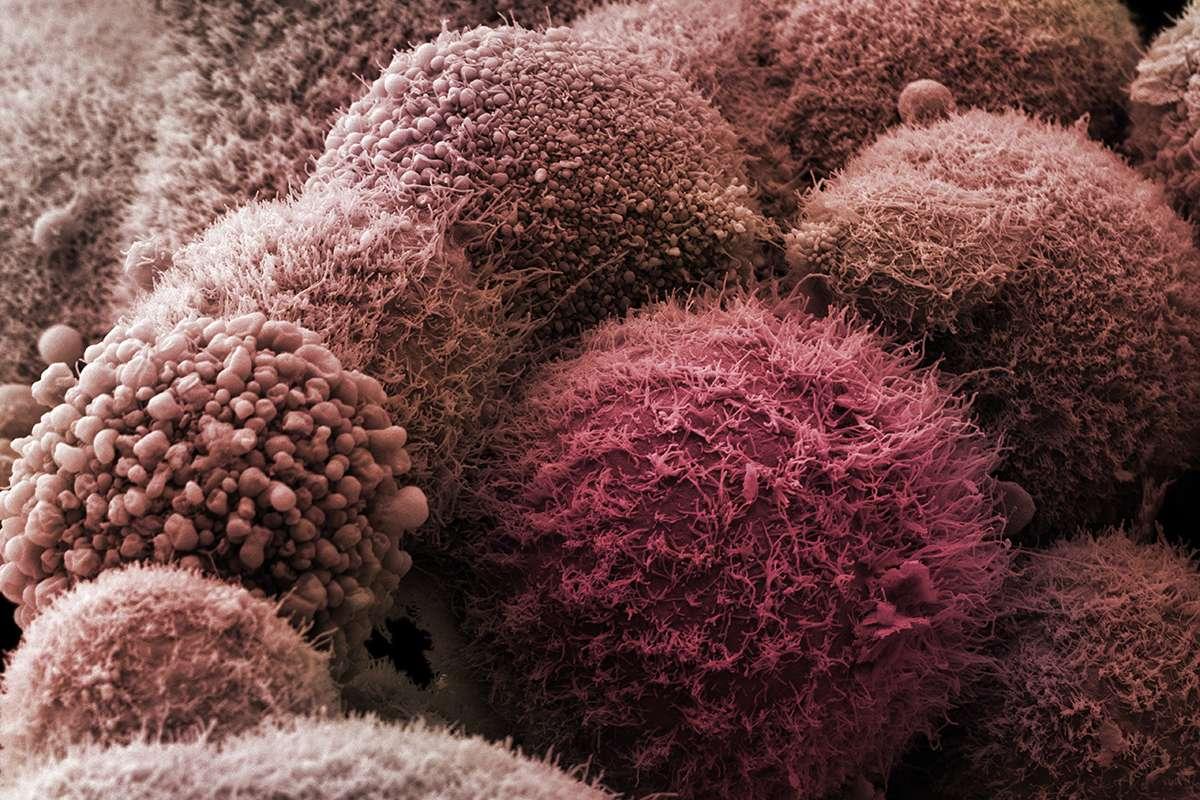 Лекарство от инсульта повысило эффективность лечения рака поджелудочной железы