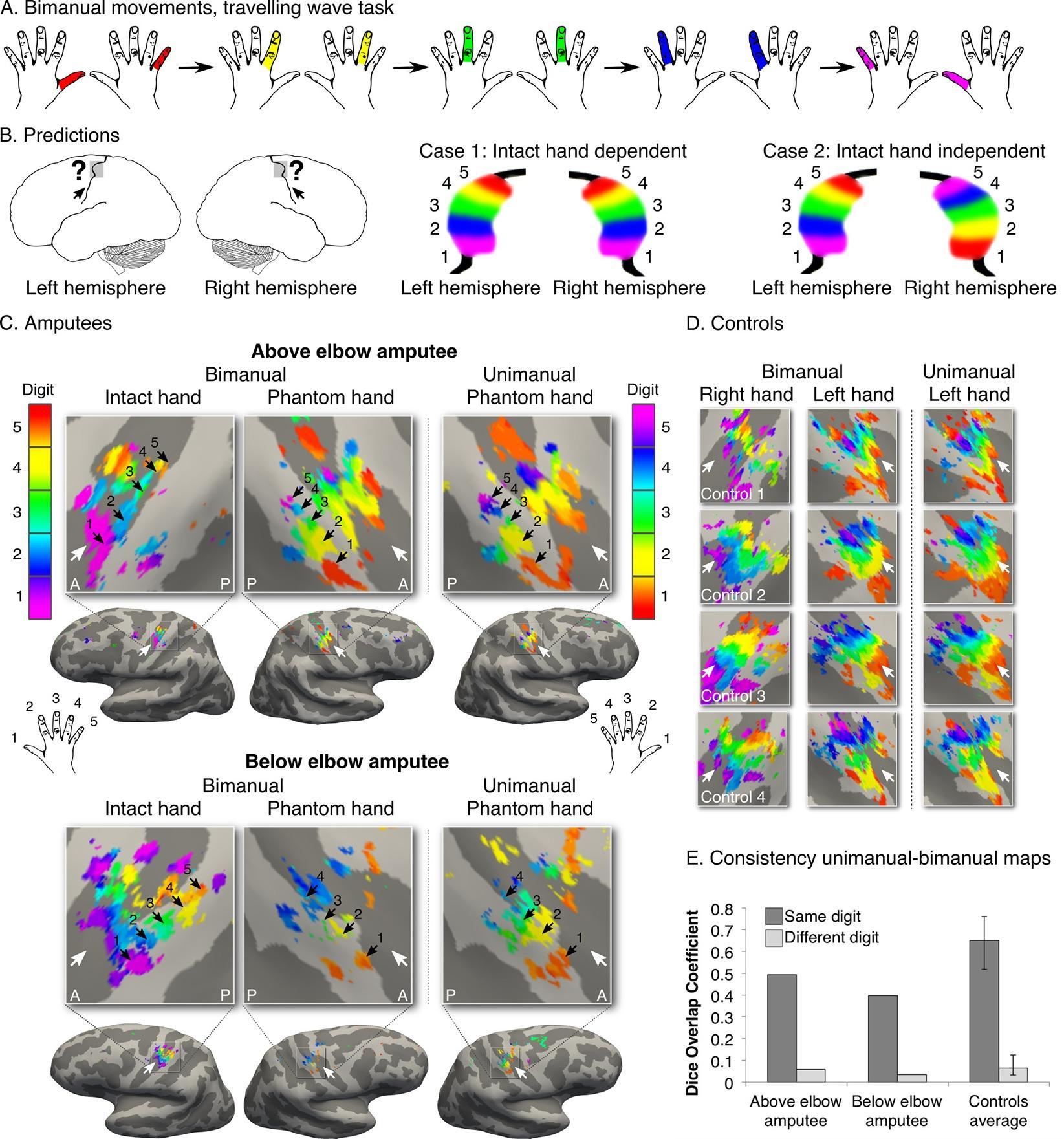 Мозг человека помнит ампутированные конечности даже через десятки лет