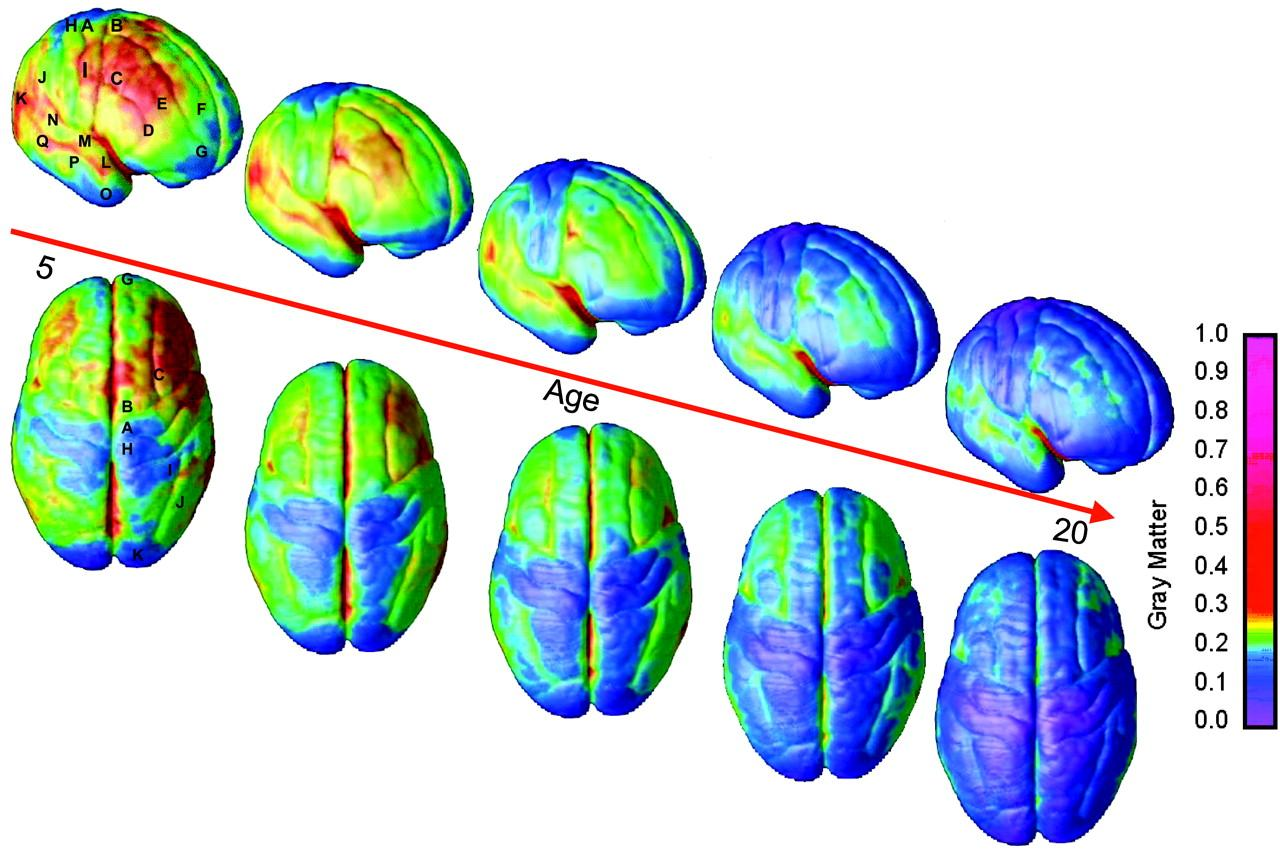 С возрастом плотность серого вещества мозга повышается